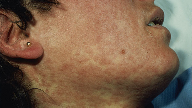 The red measles rash