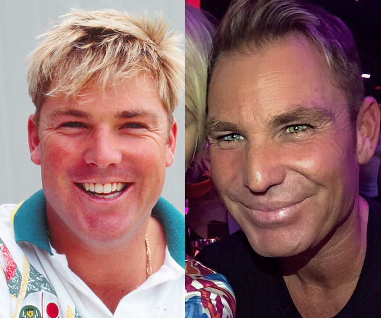 'Plastic' Shane Warne faces surgery rumours
