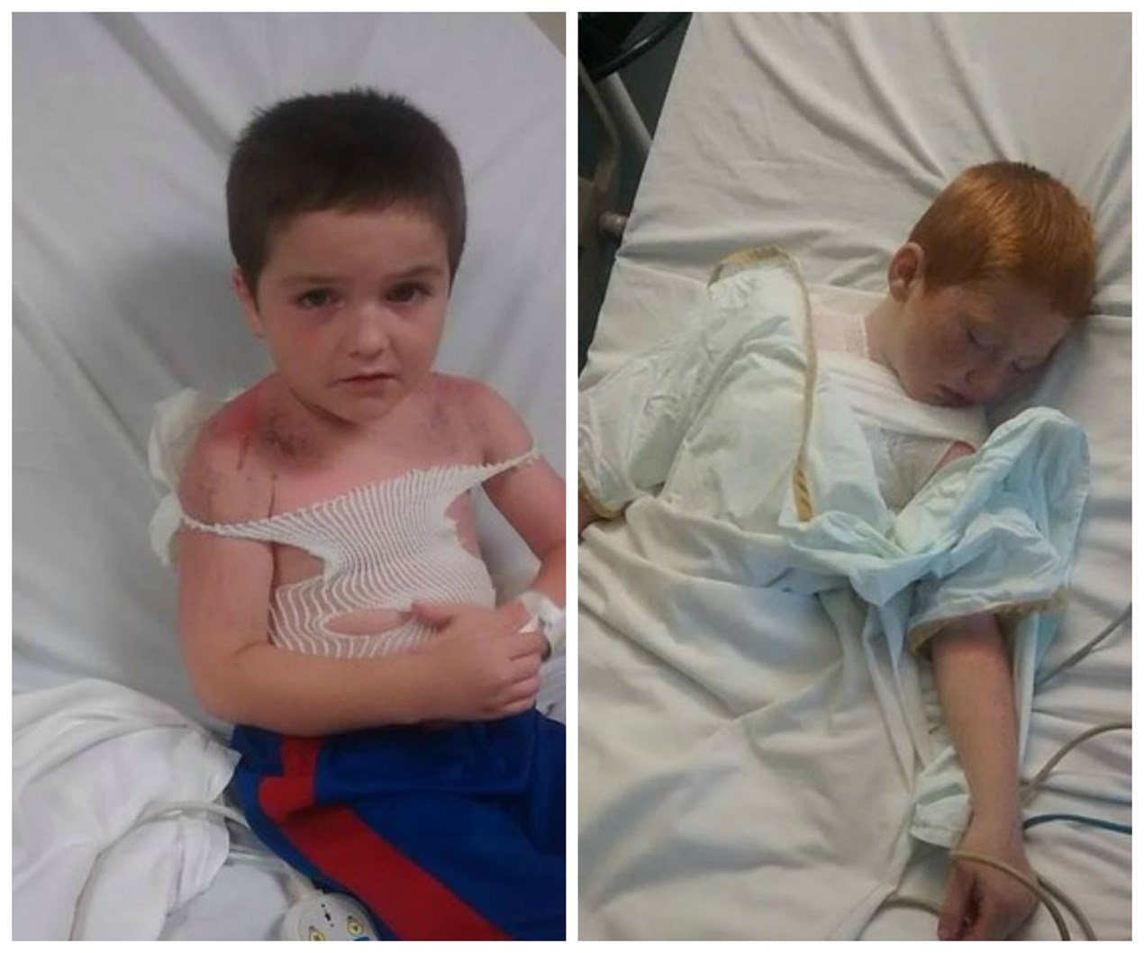 Boys suffer second and third degree burns at daycare