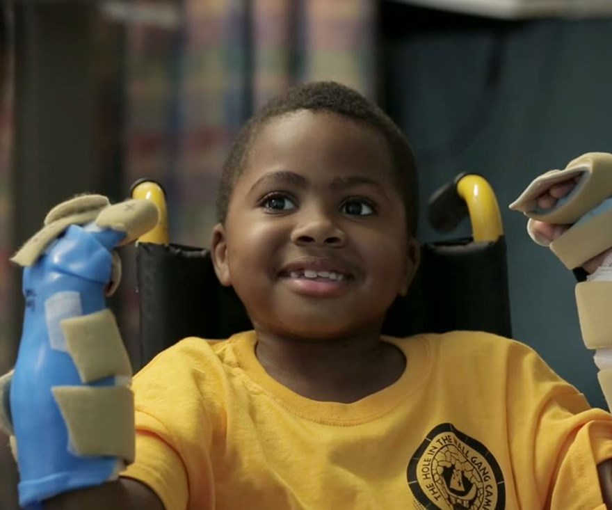 Boy, 8, gets double hand transplant in world first
