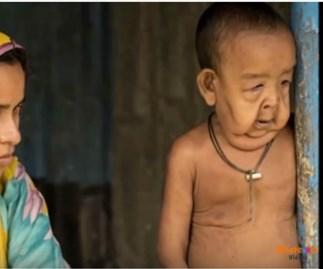 Heartbreaking tale of Bangladesh's 'Benjamin Button' toddler