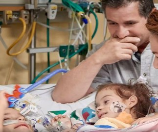 Conjoined twins separated and their doting parents