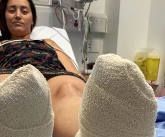 Woman walks on hot sand, severely blisters feet