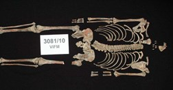 The skeletal remains of Ned Kelly found at Pentridge Prison. (Credit: VIFM)
