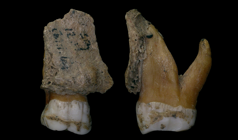 Neanderthal teeth