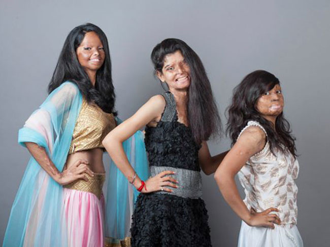 Acid attack victims unite for photo shoot