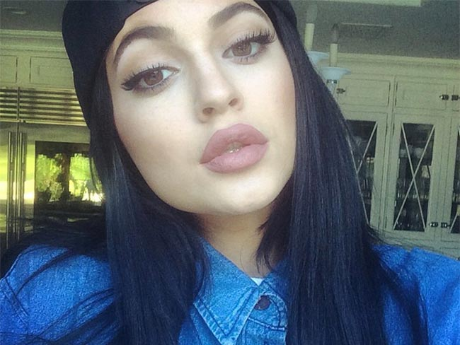 Woman tries to get lips like Kylie Jenner with disastrous results