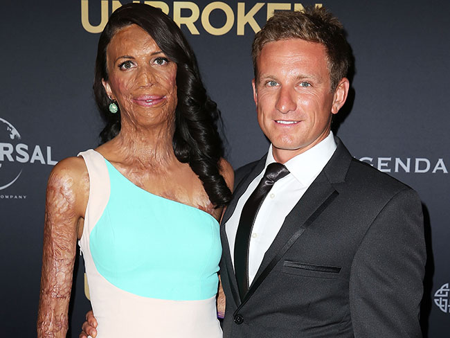 Yay! Turia Pitt has announced her engagement to long-time love Michael Hoskin