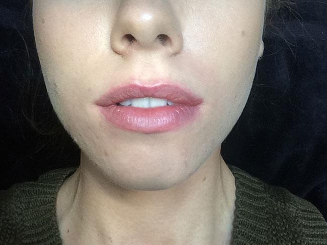 how to make a lip swelling go down