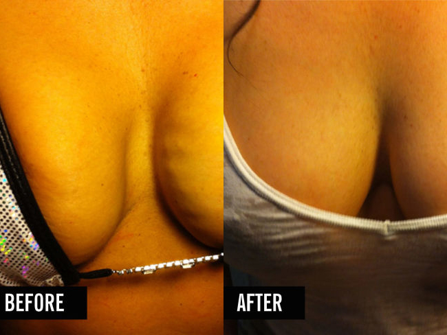 Women are getting vampire breast lifts to plump their boobs