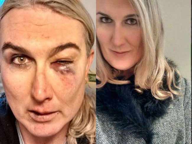 One of the men who assaulted trans woman Stephanie McCarthy has walked free