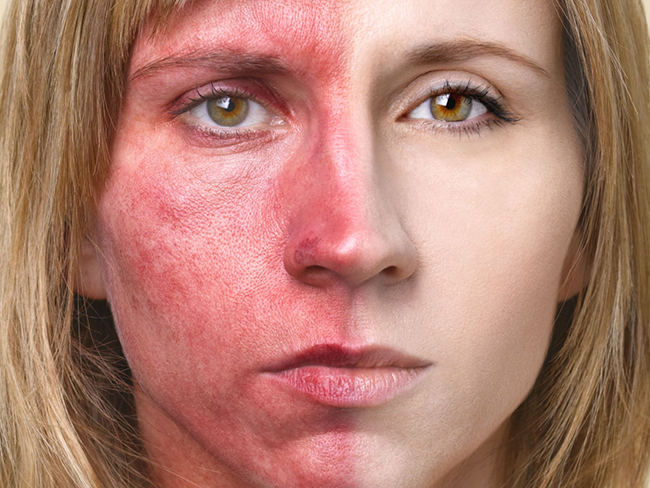 Sunscreen might not be all it's cracked up to be