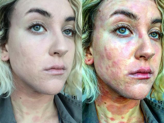 Actress shares photos of what it's really like to have psoriasis