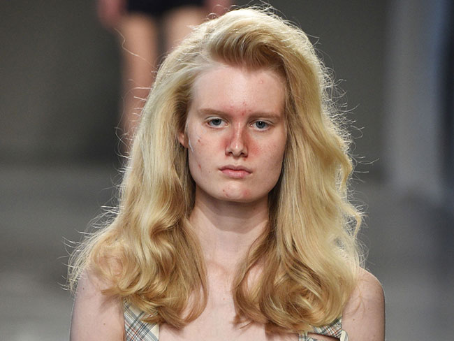 This designer sent models with acne down the catwalk for the best reason
