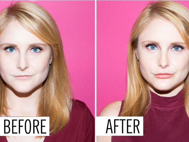 Here's what getting lip injections is really like