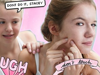 Why you should NEVER pop pimples