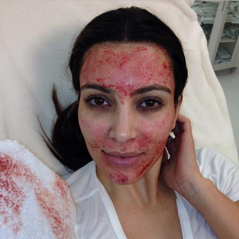 "<strong>KIM KARDASHIAN</strong> <BR> Tonight on Kourtney & Kim Take Miami!!!#VampireFacial #kktm <BR> - <a href=""https://instagram.com/kimkardashian/"">@kimkardashian</a>"