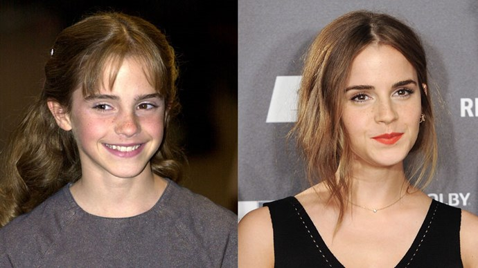 <strong>Emma Watson</strong> <BR> Possibly our biggest girl crush in history.