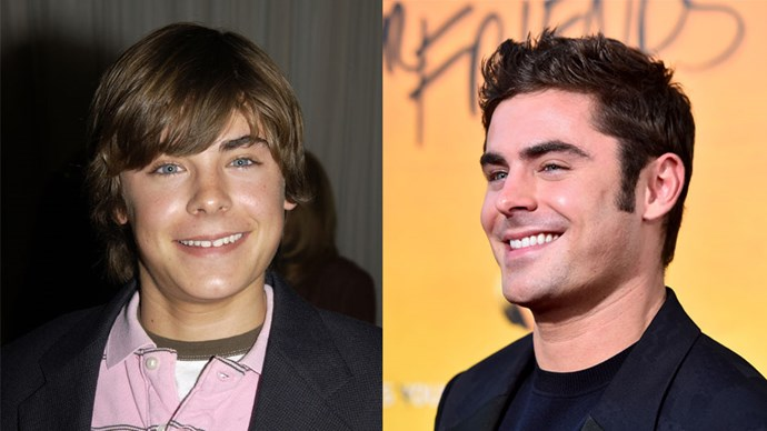<strong>Zac Efron</strong> <BR> Zac Efron going through his awkward stage and Zac Efron now out of his awkard stage.
