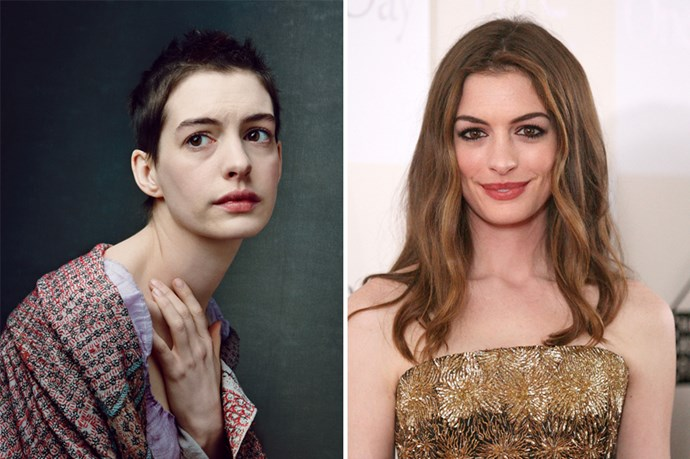 Anne Hathaway nabbed an Oscar after she shaved her head AND dropped 15 kilos for <em>Les Miserables</em>. Girls committed.