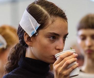 ELLE INVESTIGATES: Is Spearmint Tea The Cure To Hormonal Acne?