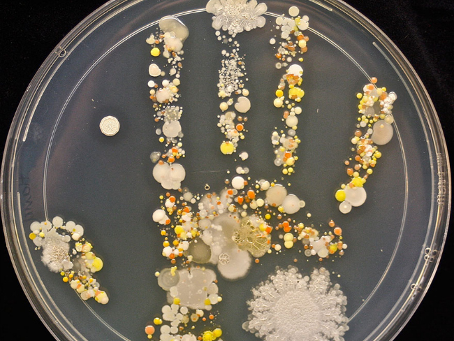 Scientist Mum Shows Bacteria Living On 8-Year-Old Son's Hand