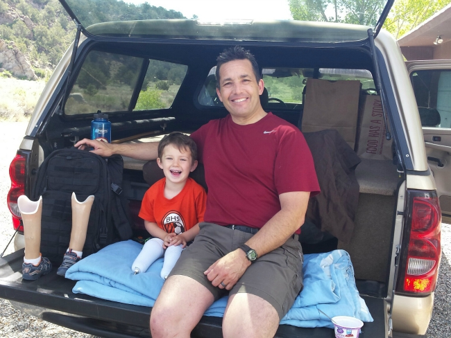 Proud Dad Jason Gallardo Shares Amputee Son's Brave Journey