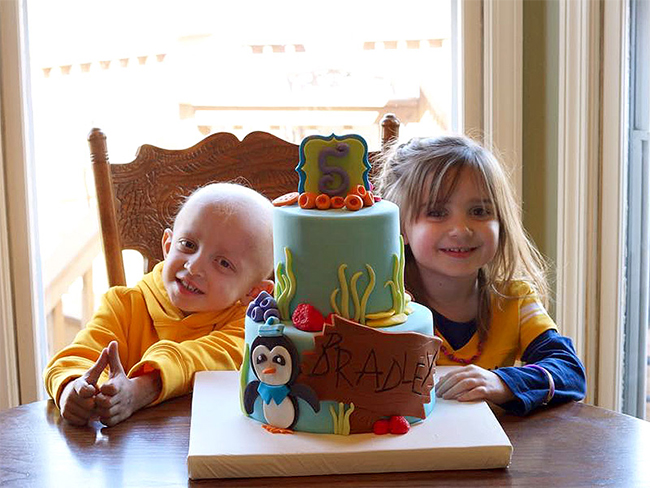 Five-Year-Old Saves Her Twin Brother's Life with Bone Marrow Transplant