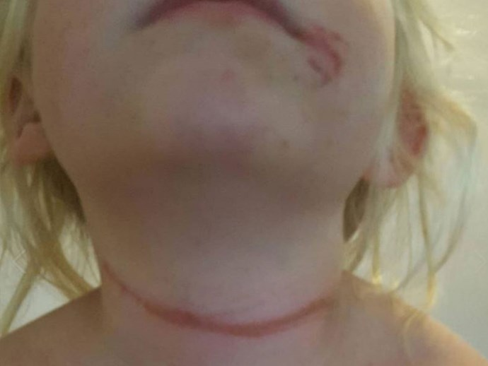 Cords on hats banned in SA schools after little girl is almost strangled