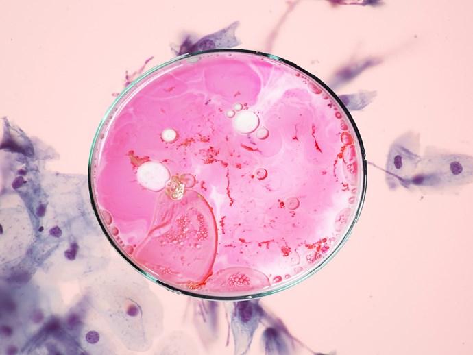 Pap smear screening