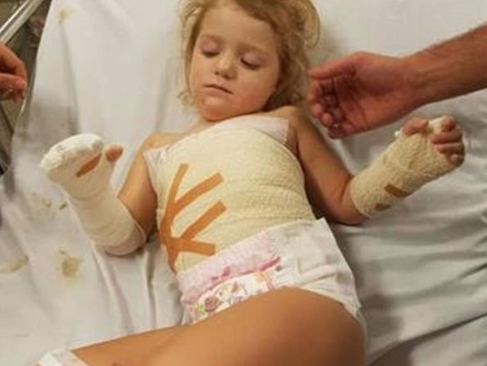 A three-year-old has been forced to get skin grafts after horrific treadmill accident