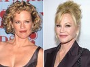 These celebs seriously regret their plastic surgery mistakes