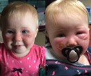 Baby girl's blistering burns after wearing Banana Boat sunscreen will horrify you