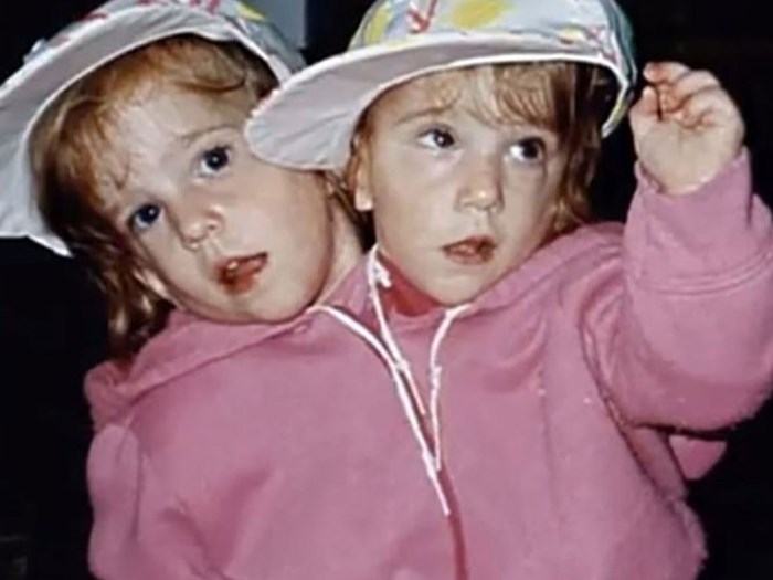 What are conjoined twins Abby and Brittany Hensel up to now?