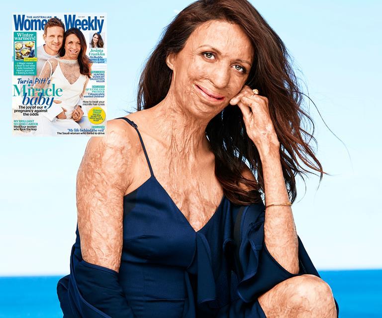Touching details behind Turia Pitt's miracle pregnancy   Australian Women's  Weekly