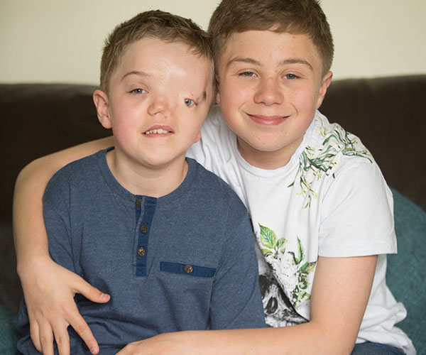 Instagram removes photo showing Stoke boy without an eye