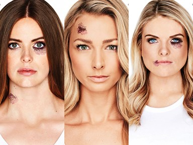 Cosmo's Domestic Abuse Campaign: Don't turn a blind eye because you can't see the scars