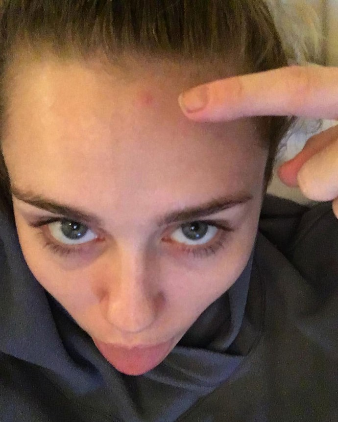 """Miley Cyrus: The time she posted this picture on Insta with the caption, """"I deserve it. Too much pizza. Not enough water. #firstpimpleof2017"""""""