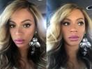 Has Beyoncé had lip injections?