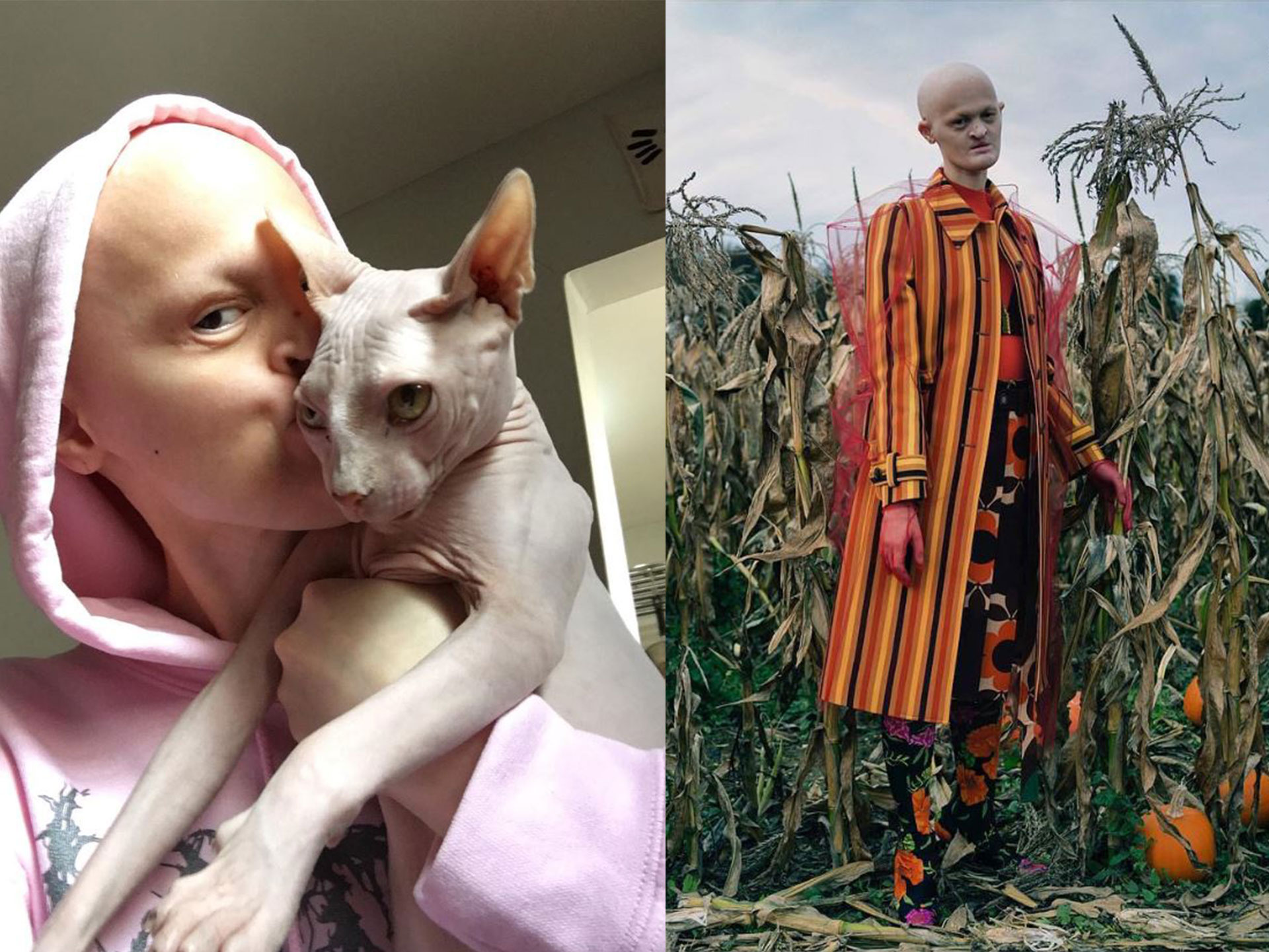 Model Melanie Gaydos Has a Rare Genetic Disorder—And Shes Taking Over the Fashion World