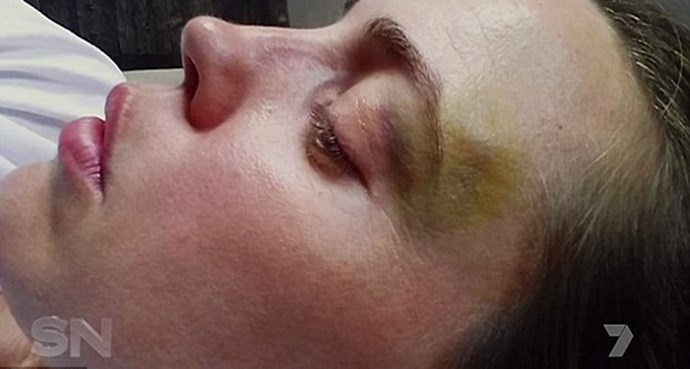 Melissa released injury pictures that showed horrific facial bruising.