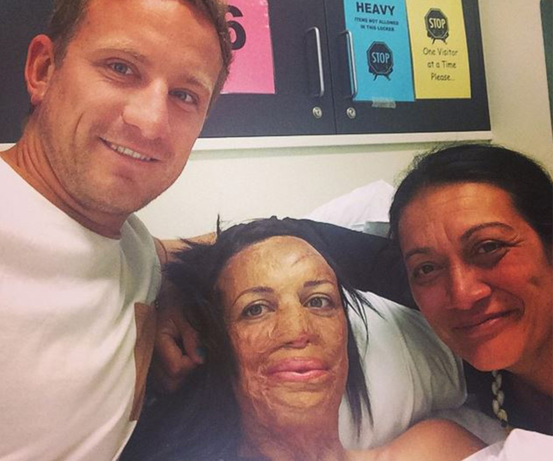 In pictures: Turia Pitt and Michael Hoskin's love story:But in 2011 Turia suffered burns to 65 per cent of her body, lost her fingers and thumb on her right hand and spent five months in hospital after she was trapped by a grassfire in a 100 kilometre ultra-marathon in the Kimberley.
