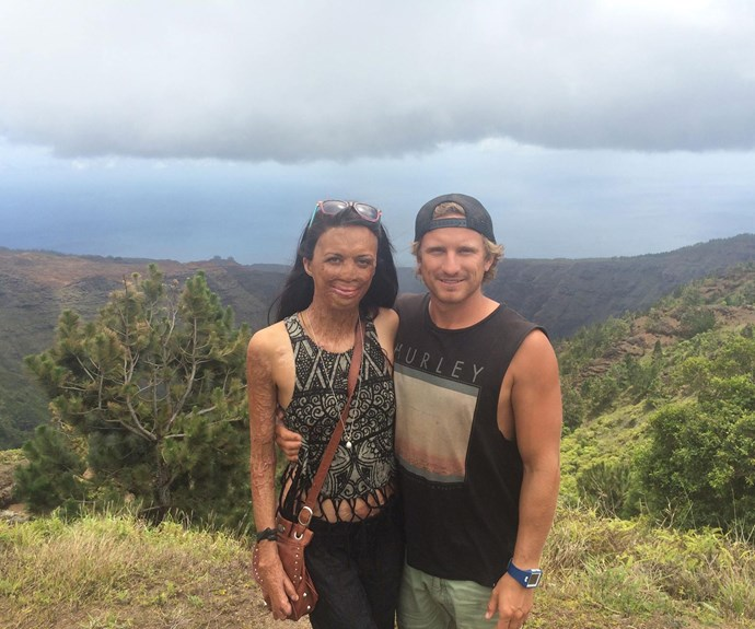 """Turia,  [always a picture of positivity](http://www.aww.com.au/latest-news/in-the-mag/turia-pitt-engaged-21444) said: """"My life is incredible. I've got an amazing partner, beautiful family and friends."""""""