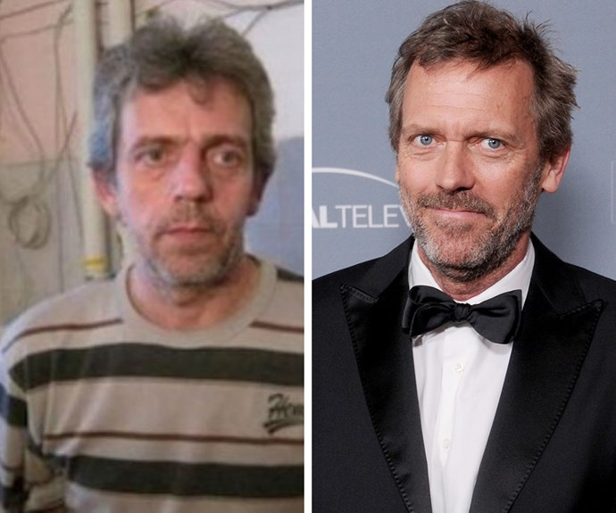 We bet this guy gets a lot of people coming up to him and asking him about their bumps and lumps! He looks just like Hugh Laurie, AKA Dr House!