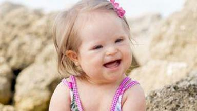 The beautiful faces of Down syndrome