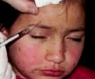 Should mother be banned from injecting daughter, 8, with Botox?
