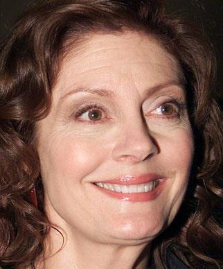 Susan Surrandon has always refused to succumb to Hollywood's obsession with youth through surgical enhancements. Not only is she a talented actress, but also known for her social and political activism for a variety of liberal causes.
