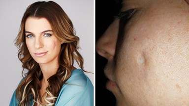 Botched plastic surgery gouged a hole in my face