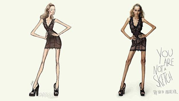 Graphic anti-anorexia campaign goes viral