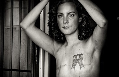 Breast cancer survivors can now share mastectomy photos on Facebook